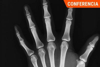 De la Osteogénesis a la Fractura